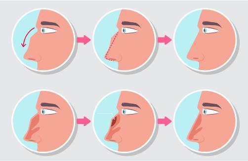 nose job plastic surgery